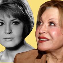 5 знаменитостей, которых испортили пластические операции